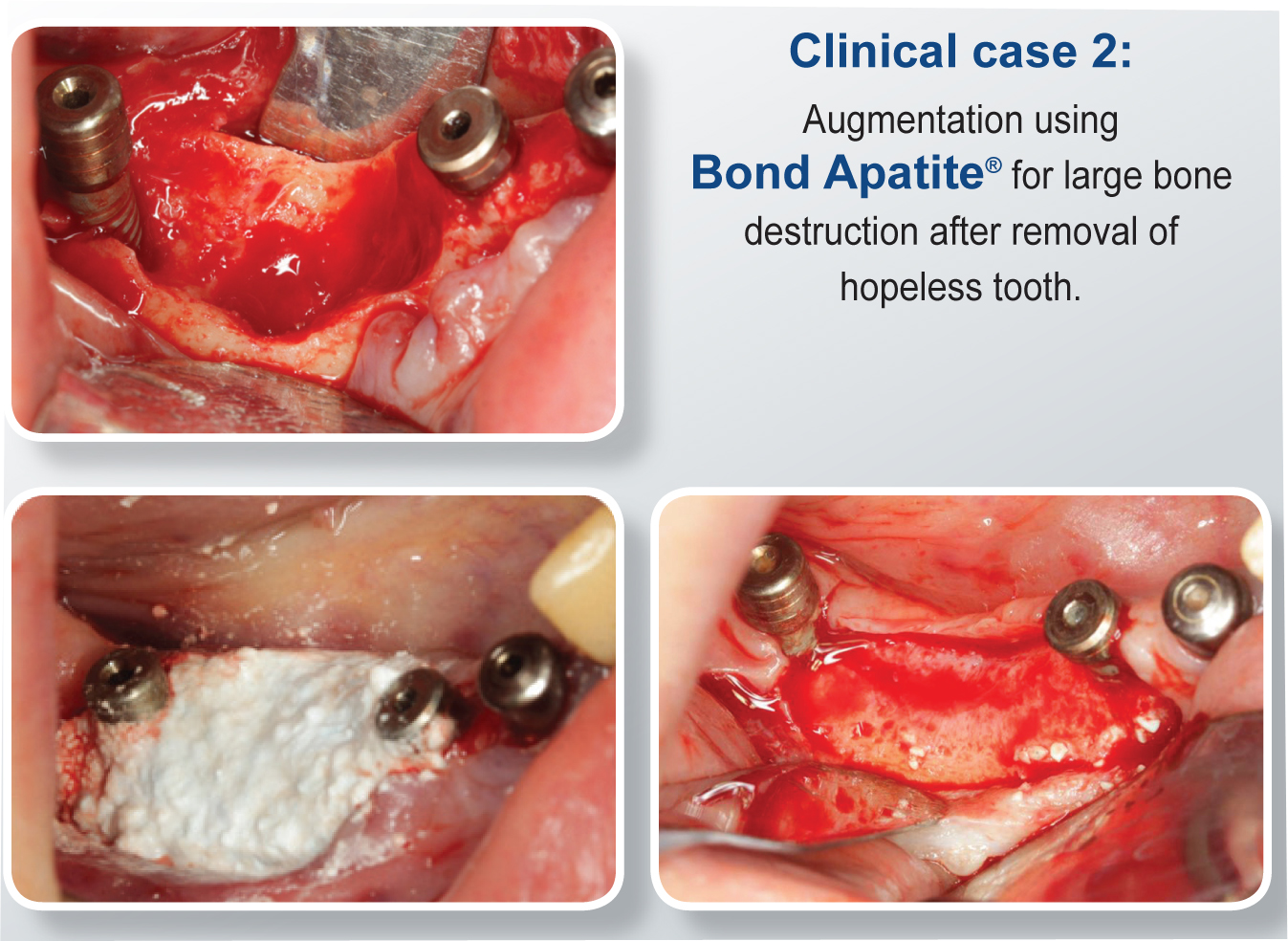 Bond Apatite Bone Graft Cement - Clinical Case